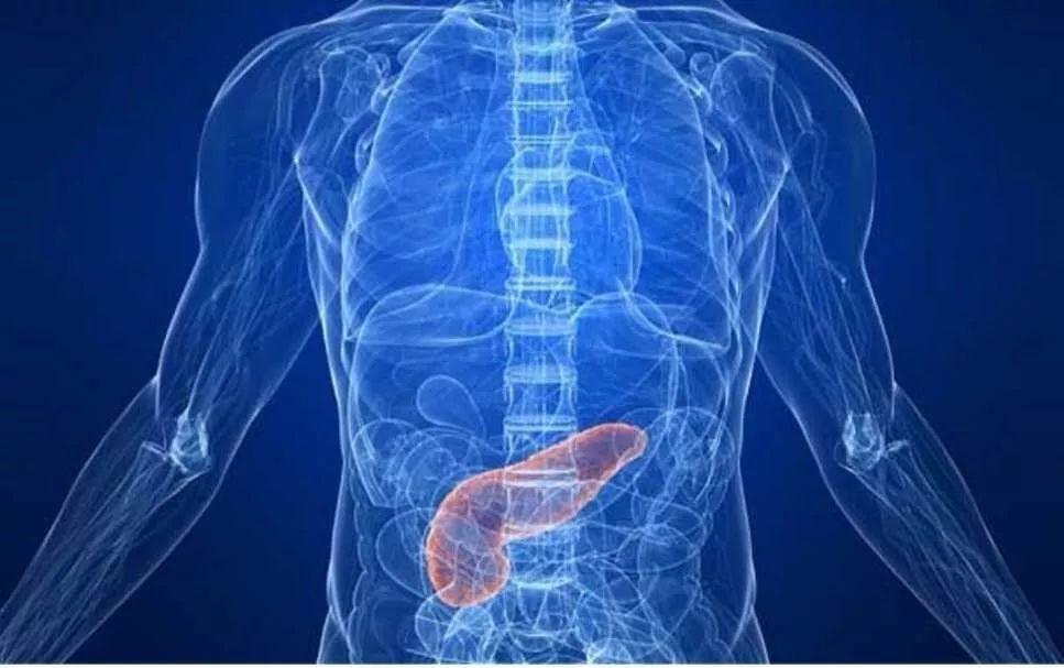 """Ung thư tuyến tụy được coi là """"vua ung thư"""", nên khám càng sớm càng tốt khi có 3 dấu hiệu này - 3"""