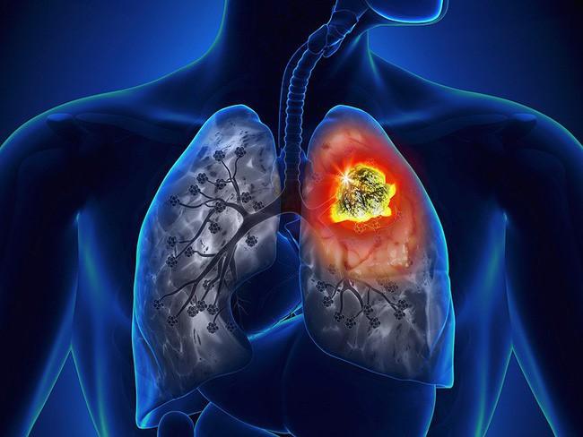 Tưởng bị viêm phổi ai dè bị ung thư phổi, người phụ nữ hối hận vì bỏ qua dấu hiệu quan trọng này - Ảnh 1.