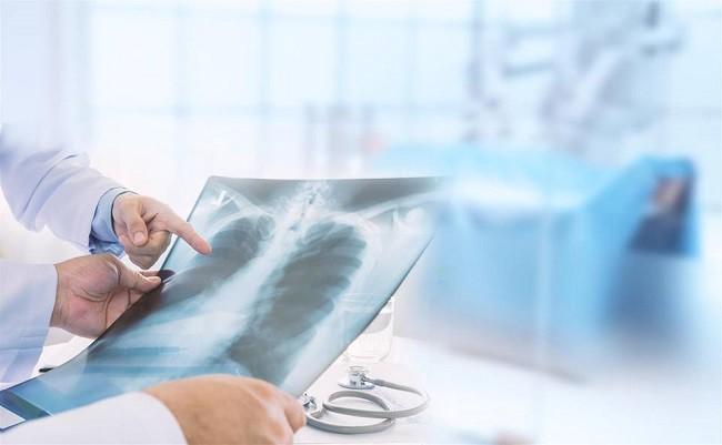 Tưởng bị viêm phổi ai dè bị ung thư phổi, người phụ nữ hối hận vì bỏ qua dấu hiệu quan trọng này - Ảnh 4.