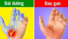 7 dấu hiệu ở bàn tay chỉ ra sức khỏe của bạn đang có vấn đề