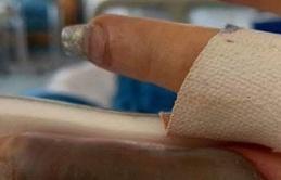 Làm nail ở tiệm quen, người phụ nữ bị hoại tử ngón tay và suýt phải cắt bỏ vì nhiễm trùng